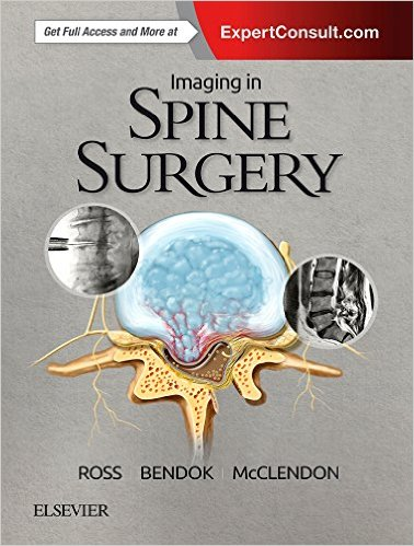 Imaging in Spine Surgery, 1e