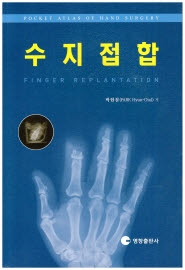 수지접합 - FINGER REPLANTATION