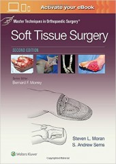 Master Techniques in Orthopaedic Surgery: Soft Tissue Surgery, 2/e