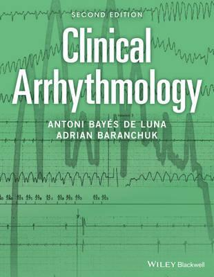 Clinical Arrhythmology, 2판