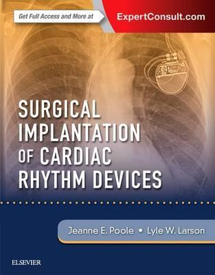 Surgical Implantation of Cardiac Rhythm Devices, 1판
