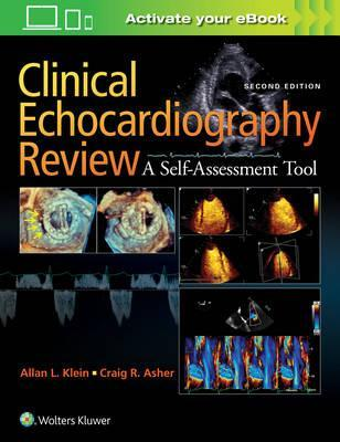 Clinical Echocardiography Review, 2판