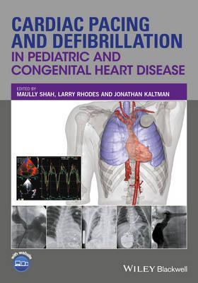 Cardiac Pacing and Defibrillation in Pediatric and Congenital Heart Disease, 1판