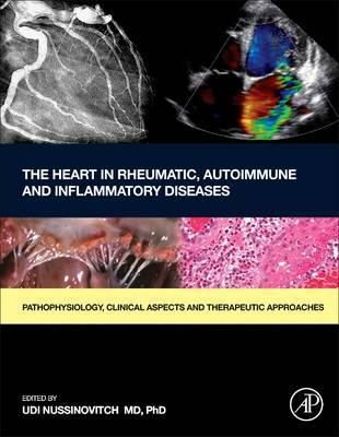 The Heart in Rheumatic, Autoimmune and Inflammatory Diseases, 1판