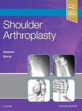Shoulder Arthroplasty-2판