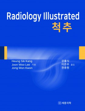 Radiology Illustrated : 척추