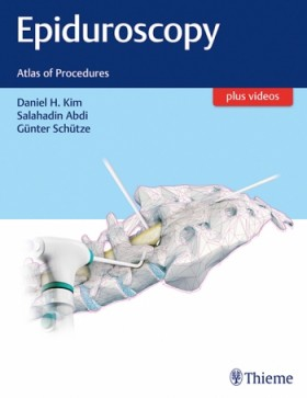 Epiduroscopy : Atlas of Procedures-1판
