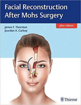 Facial Reconstruction After Mohs Surgery - 1판