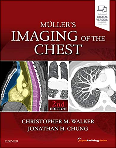 Muller's Imaging of the Chest-2판