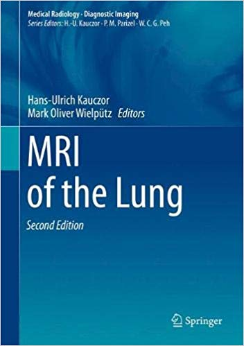 MRI of the Lung - 2판
