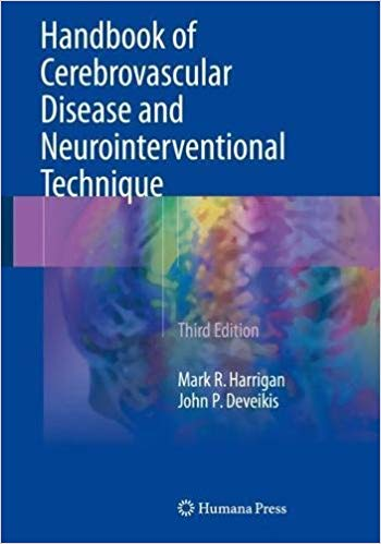 Handbook of Cerebrovascular Disease and Neurointerventional Technique - 3판