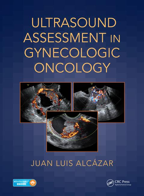 Ultrasound Assessment in Gynecologic Oncology-1판