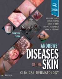 Andrews' Diseases of the Skin-13판