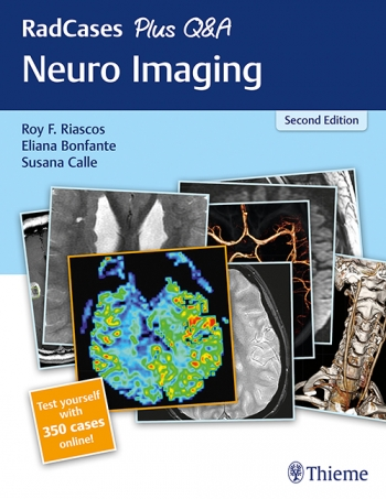 RadCases Plus Q&A Neuro Imaging-2판