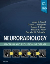 Neuroradiology: Spectrum and Evolution of Disease-1판