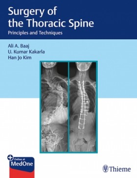 Surgery of the Thoracic Spine Principles and Techniques-1판