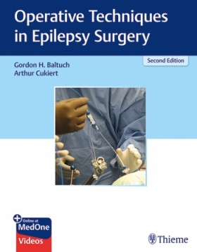 Operative Techniques in Epilepsy Surgery-2판