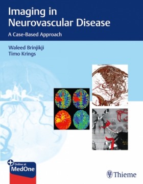 Imaging in Neurovascular Disease