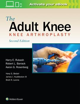 The Adult Knee-2판