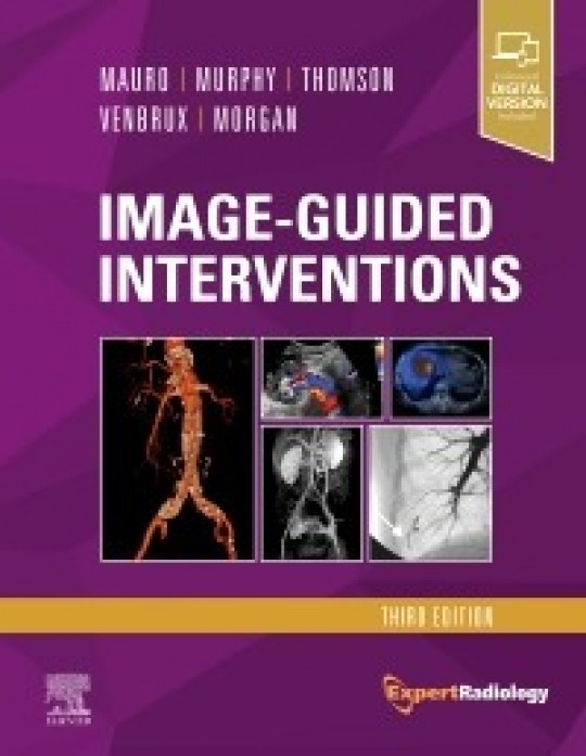 Image-Guided Interventions-3판