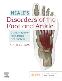 Neale'S Disorders Of The Foot And Ankle-9판