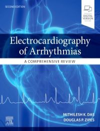 Electrocardiography of Arrhythmias-A Comprehensive Review-2판