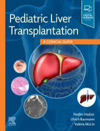 Pediatric Liver Transplantation-1판