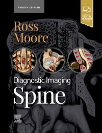 Diagnostic Imaging: Spine-4판