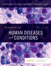Essentials of Human Diseases and Conditions-7판