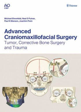 Advanced Craniomaxillofacial Surgery: Tumor, Corrective Bone Surgery and Trauma