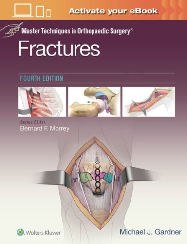 Master Techniques in Orthopaedic Surgery: Fractures-4판