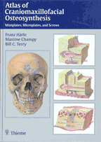 Atlas of Craniomaxillofacial Osteosynthesis : Microplates, Miniplates, and Screws