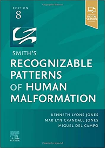 Smith's Recognizable Patterns of Human Malformation-8판