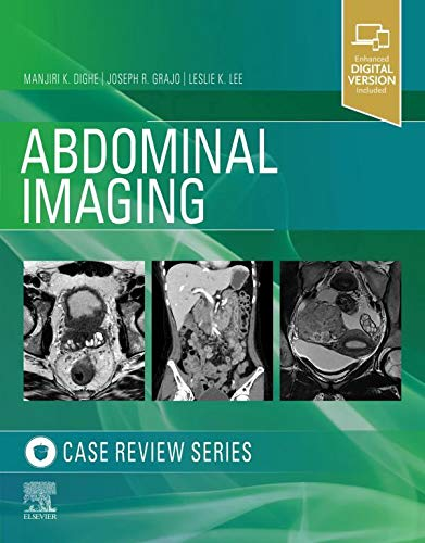 Abdominal Imaging, Case Review Series-1판