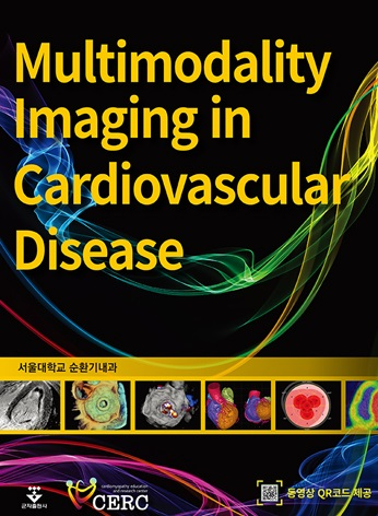 Multimodality Imaging in Cardiovascular Diseas